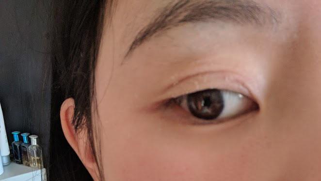 dry-eyelid-hoiyinli